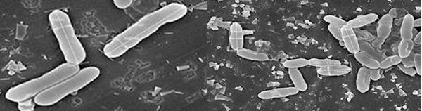 chủng vi khuẩn